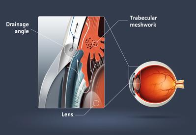 Γλαύκωμα οφθαλμίατρος