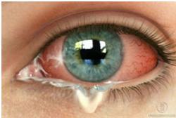 αλλεργική επιπεφυκίτιδα
